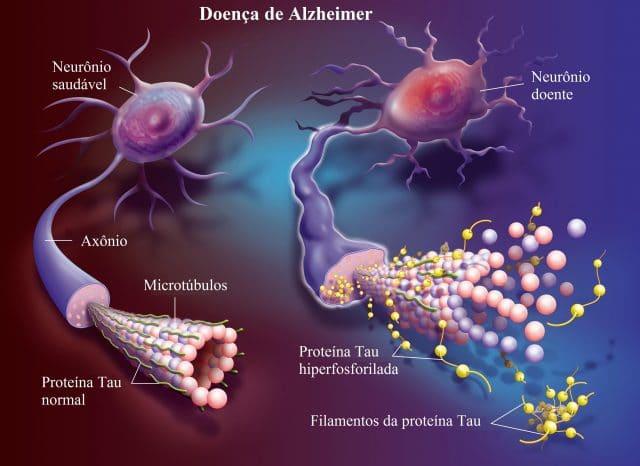 doença,de,Alzheimer