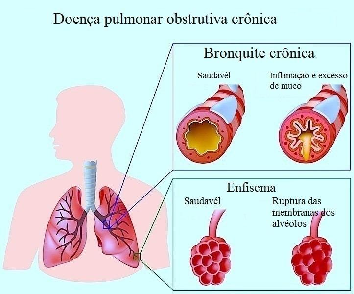 Doença pulmonar obstrutiva crônica,bronquite,alvéolos