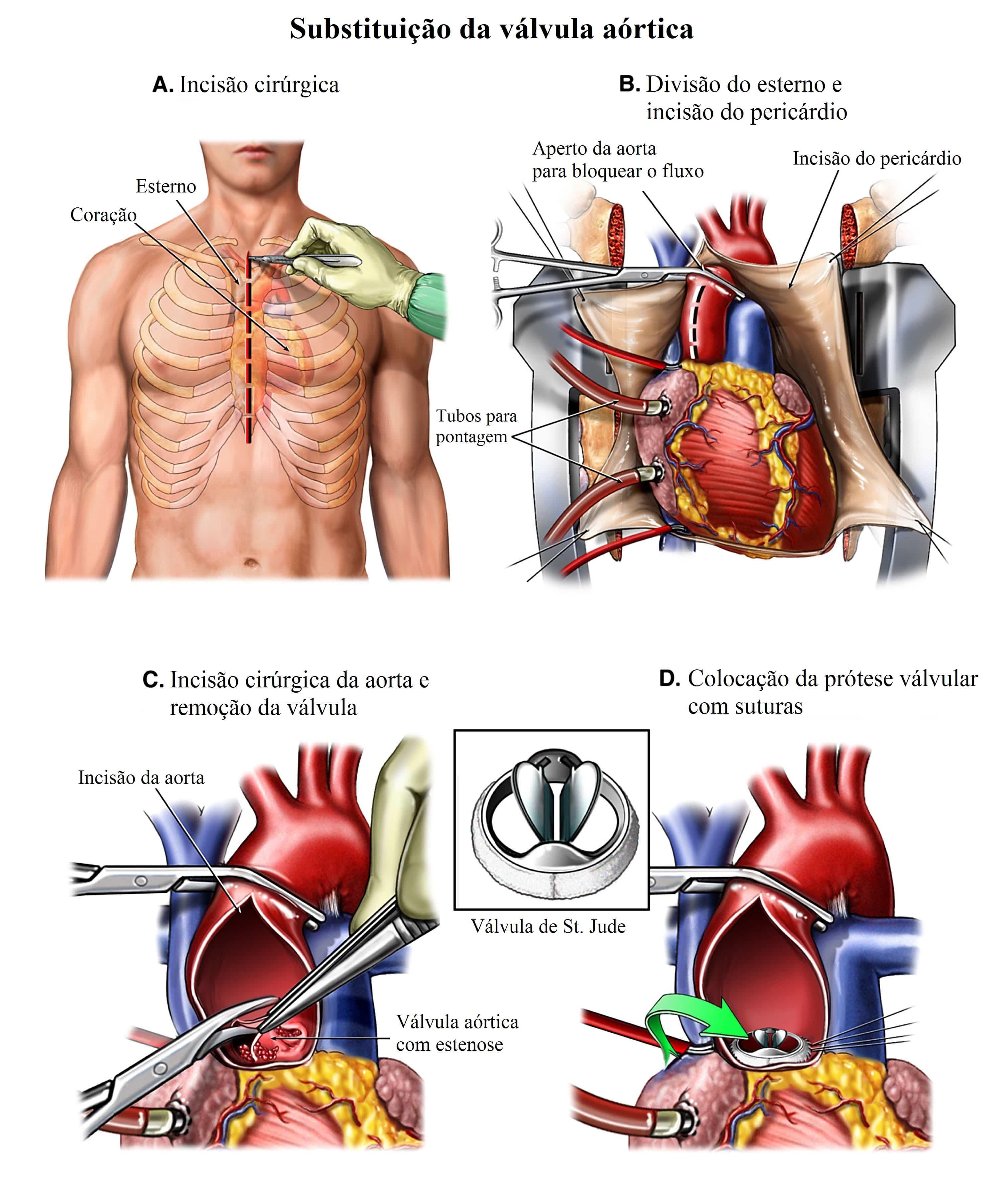 Estenose aortica, Substituição da valva aórtica, cirurgia