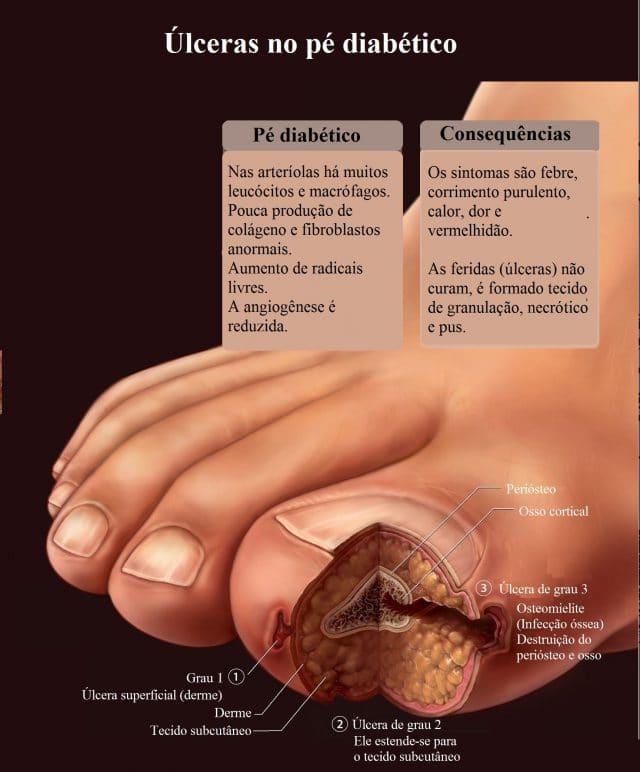pé,diabético,úlcera