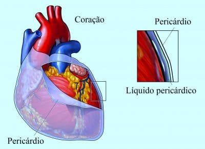pericárdio,pericardite