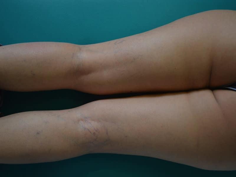 Ruptura dos vasos capilares, veias, pernas