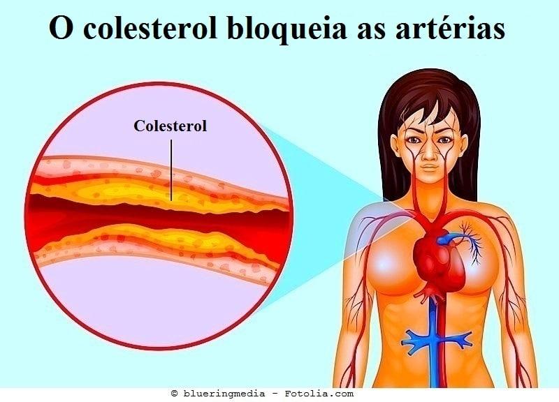 Aterosclerose, fator V leiden