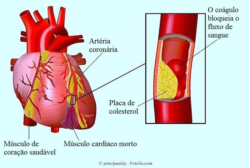 Resultado de imagem para doenças coronárias