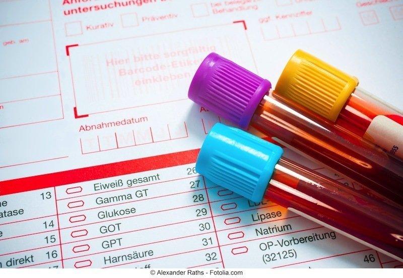 exames de sangue, exames, ferro sérico