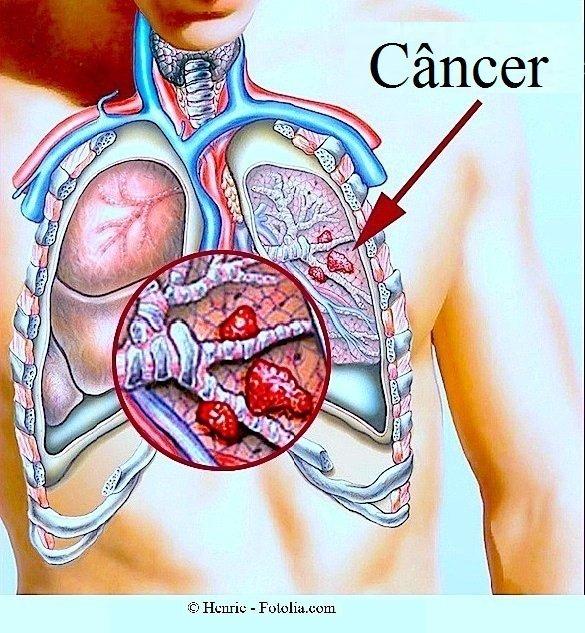 Câncer de pulmão, câncer