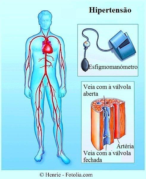 Hipertensã arterial,medição