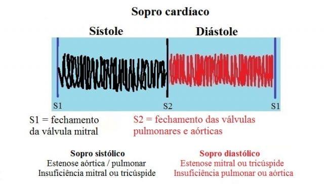 Sopro diastólico,sistolico