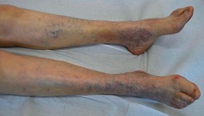 Remédios naturais para varizes,veias varicosas