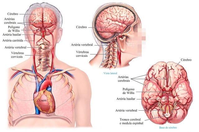 artérias,cervical,ceveau,aorta,pressão,diastólica,alta