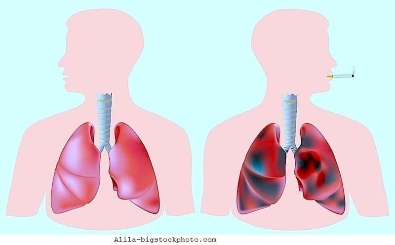 Tumor pulmonar, metástase