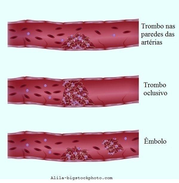 Coágulo de sangue, fator V de leiden