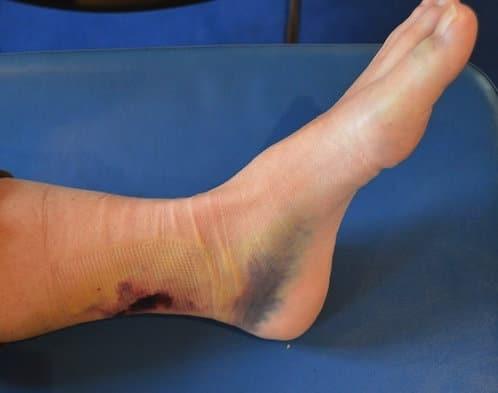 hematoma no pé