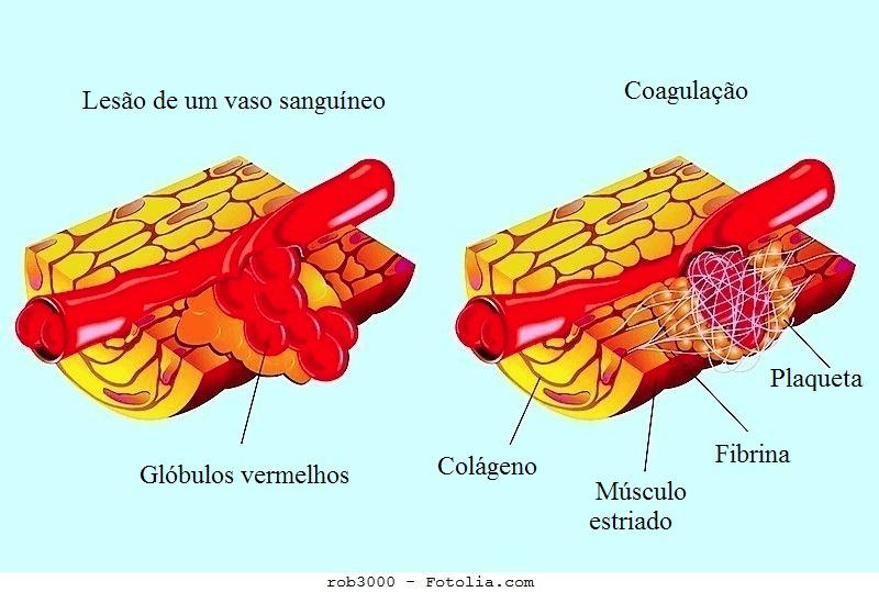 hematoma,muscular,sangue