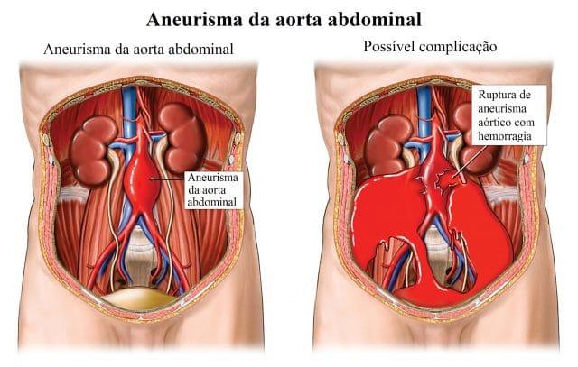 ruptura,aneurisma