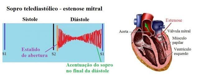 sopro diastólico de estenose mitral