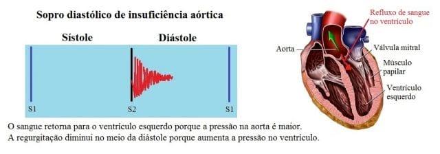sopro diastólico,insuficiência aortica
