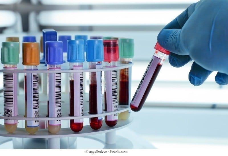 Exames de sangue, trombocitopenia