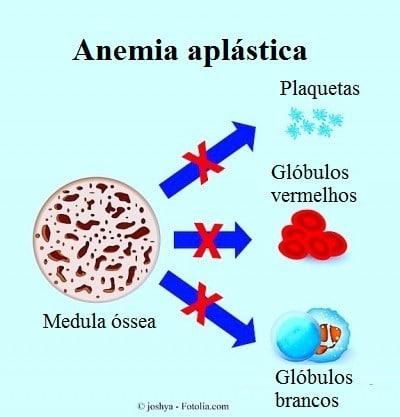 Plaquetas baixas ou Trombocitopenia