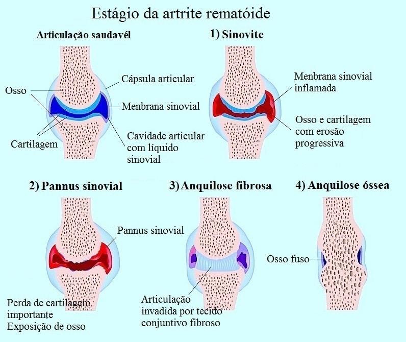 Sintomas da artrite reumatóide