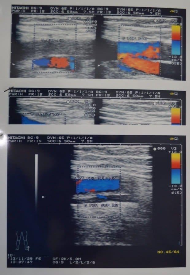 Ultra-som com doppler com trombose venosa profunda