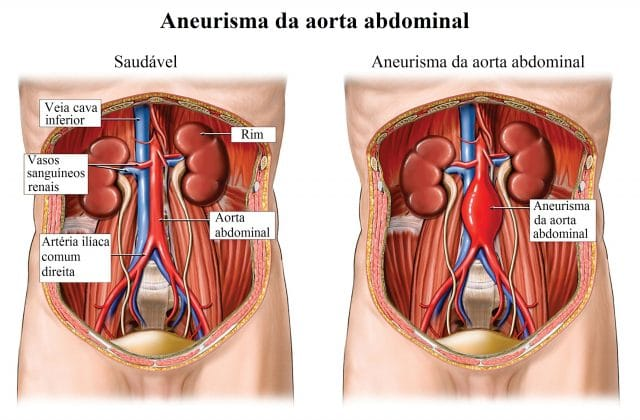 aneurisma,da,aorta