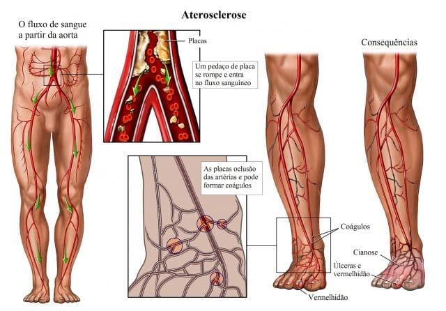 arteriosclerose,aterosclerose-placas,artérias,cianose,úlceras