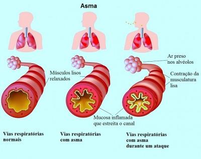 asma,vias respiratorias,ar