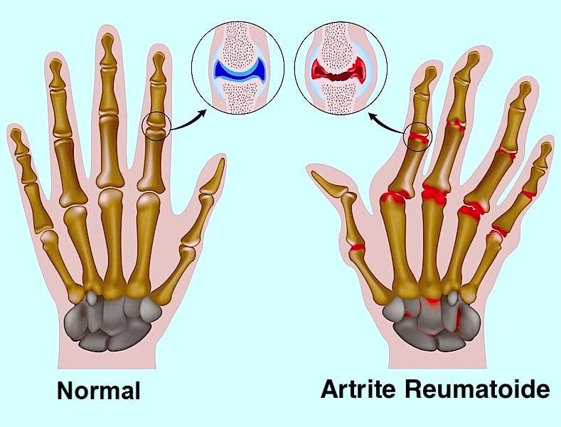 Erosão, articulações, dedos, mão, deformação, mutilação, artrite reumatóide