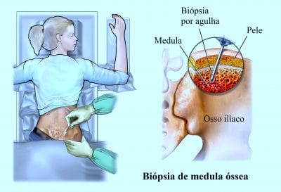biopsia,medula,óssea