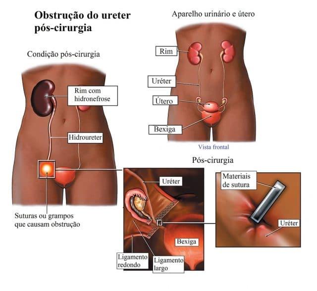 estenose,uretral,obstrução,hydronephrosis