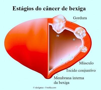 Cancer bexiga,estagios