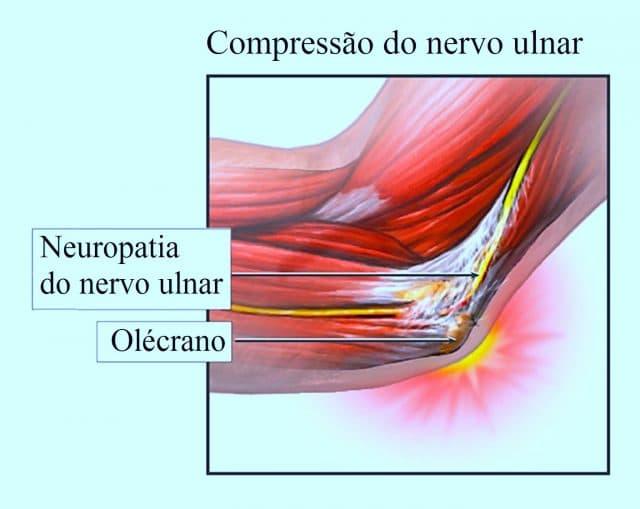 neuropatia,do,nervo,ulnar