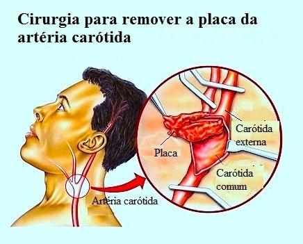 Stent, estenose carotídea, aterosclerose