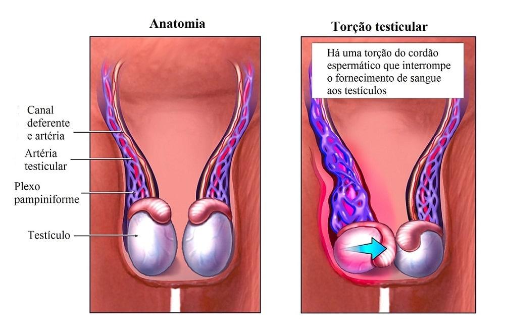 Único Testículo Humano Patrón - Imágenes de Anatomía Humana ...