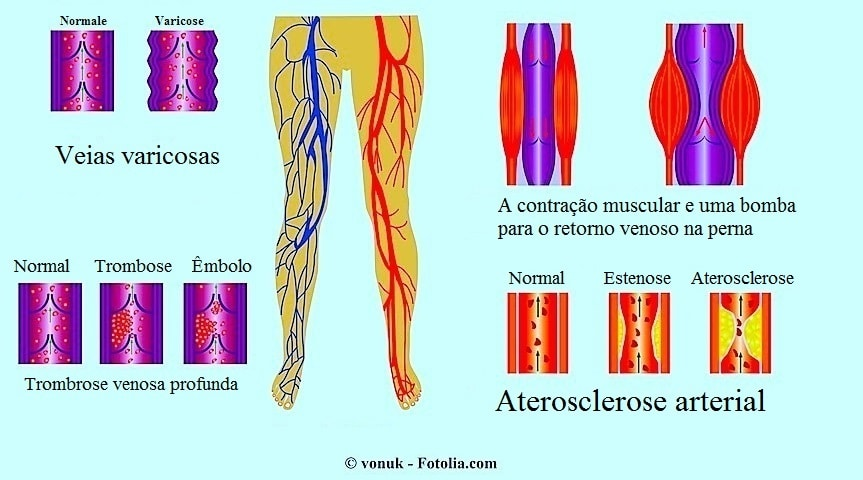 Veias varicosas e aterosclerose