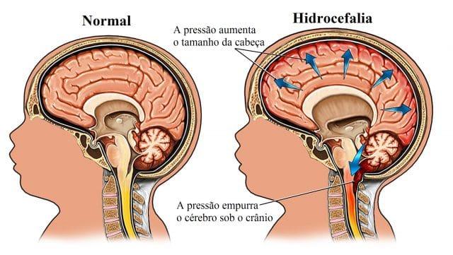 hidrocefalia,espinha,bífida