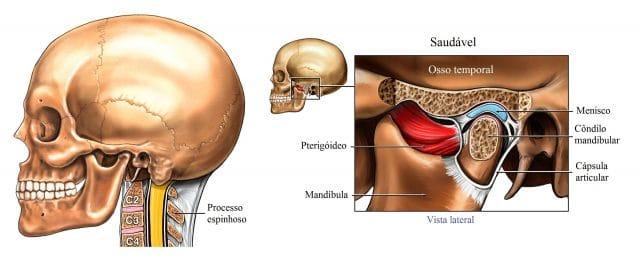 maloclusão,mandíbula,articulação