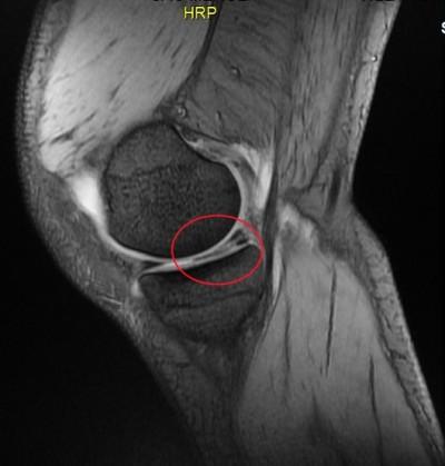 MRI joelho, cruzados, colaterais meniscos.