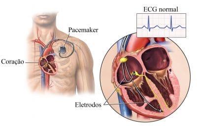 pacemaker,estimulador,elétrico