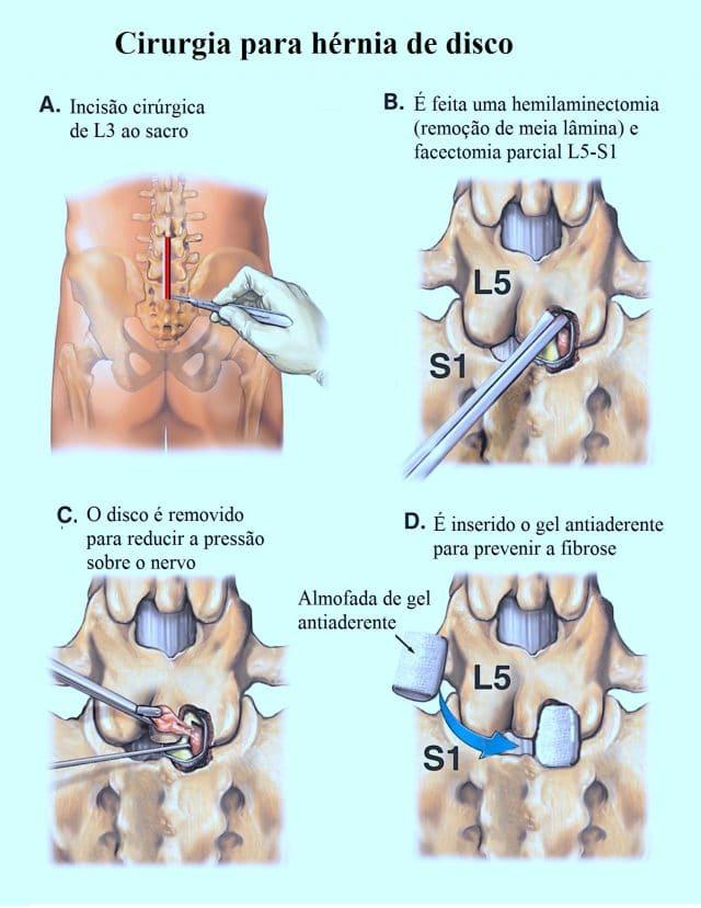Cirurgia,para,hérnia,de,disco