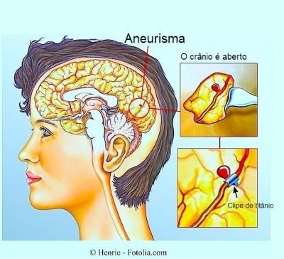 Aneurisma, hemorragia cerebral
