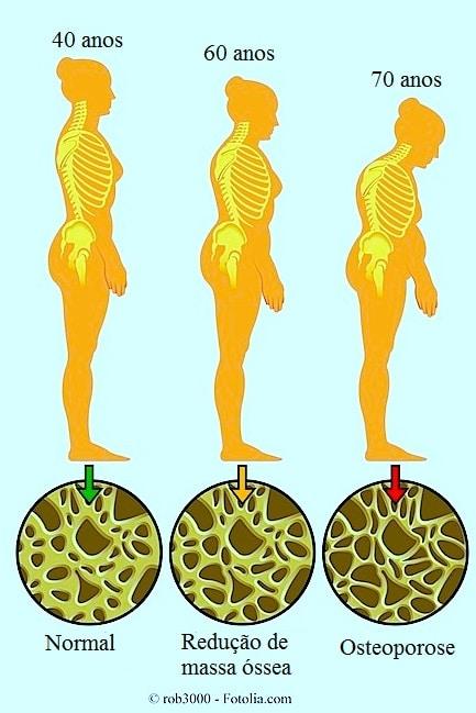 Osteoporose, osso, corcunda, sintomas, tratamento