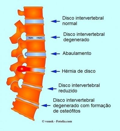 Hérnia, o abaulamento, artrose, osteófitos, coluna