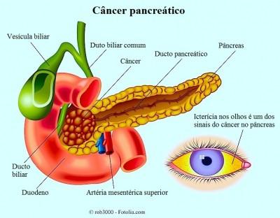 câncer de pâncreas,Icterícia pré-hepática