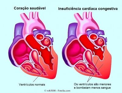 Insuficiência cardíaca,venttriculos,bombeamento