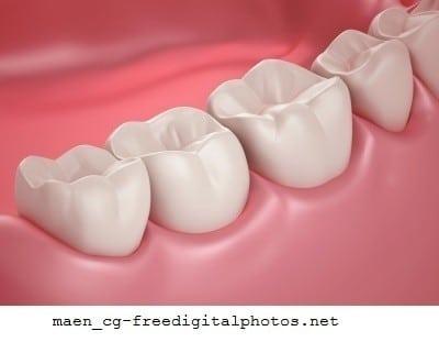 Queda dos dentes