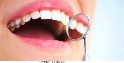 Dentes,placa,sorriso