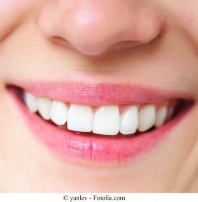 Queda dos dentes, sorriso