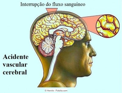 Sintomas do acidente vascular cerebral